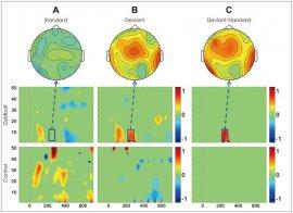 JCN :: Journal of Clinical Neurology